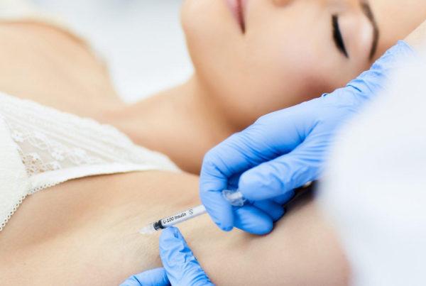 гипергидроз подмышек лечение